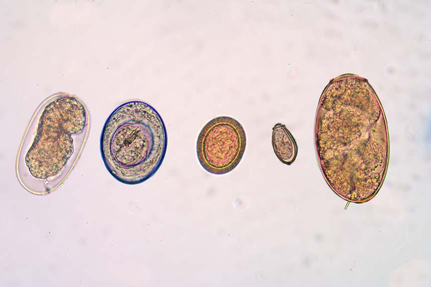 Eier verschiedener Darm-parasiten